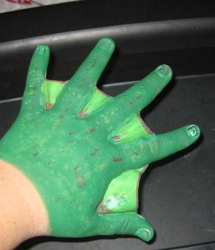 webbed fingers