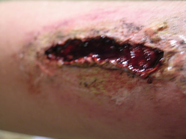 Theater Effects: Lacerations