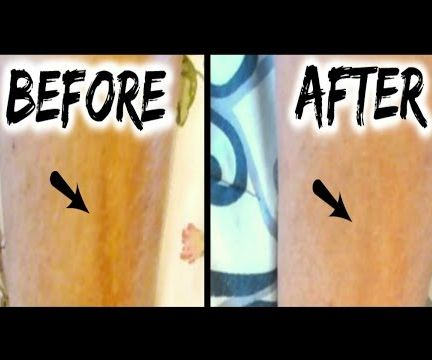 Mederma Advanced Scar Gel Review & Results l Scar Before & After