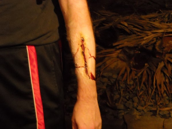 Gelatin Wounds.