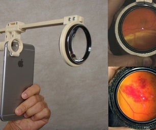 Smartphone Ophthalmoscope ODocs Fundus