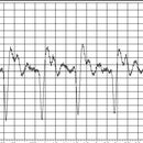 Another ECG Frontend