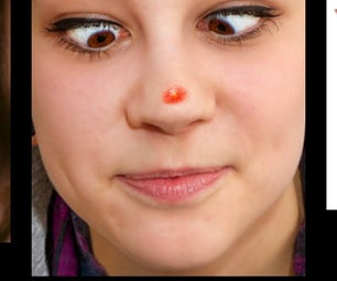 How to Get Rid of Pimples!