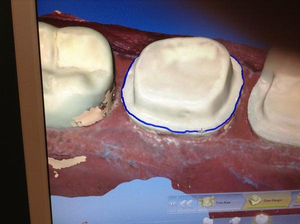 How to Fix a Tooth With CAD/CAM (CEREC)