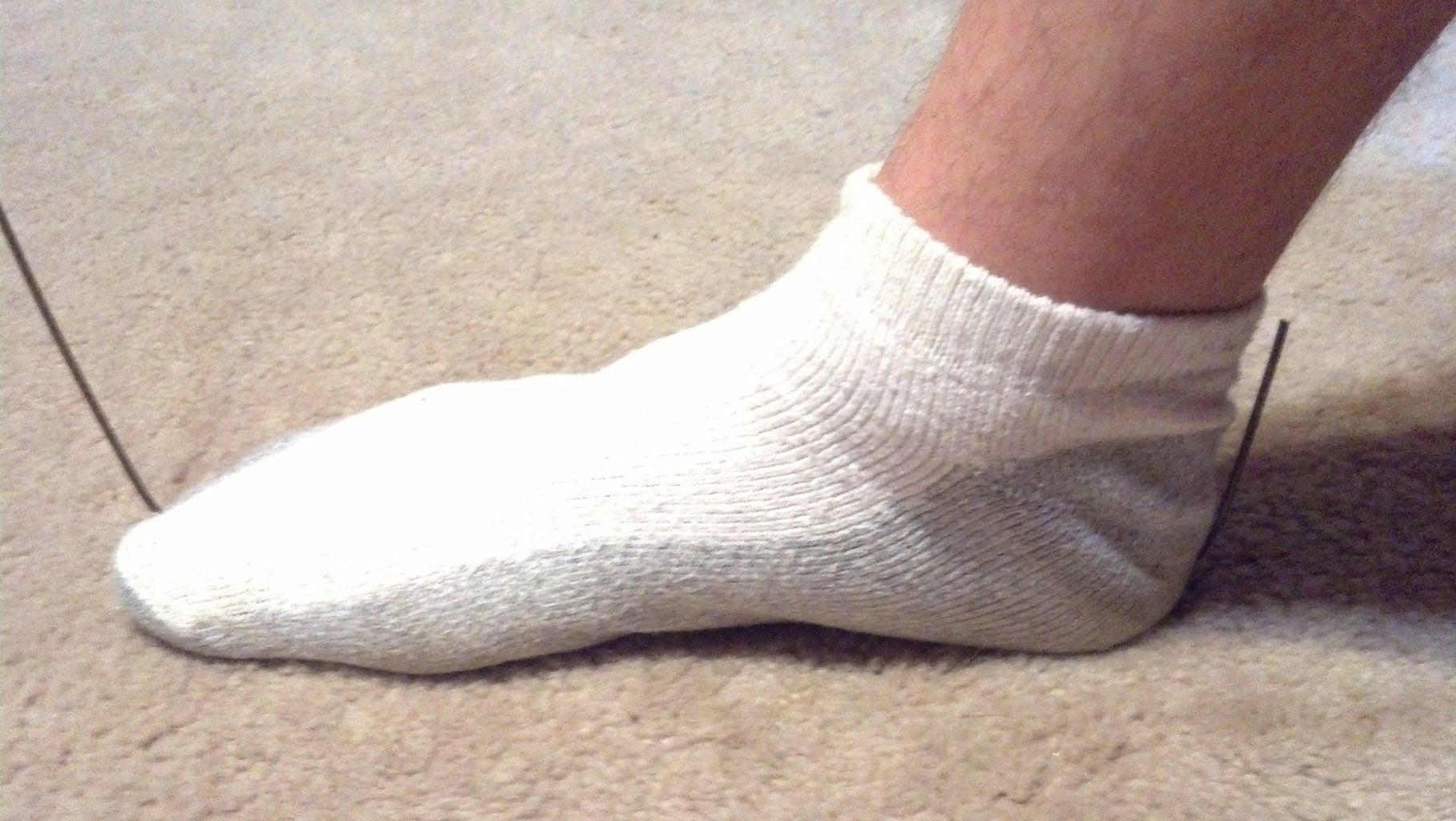 D. Feet