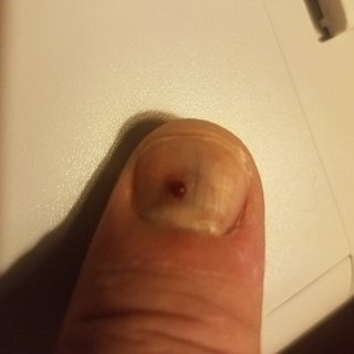 How to Drain Your Subungual Hematoma  (blood Pocket Under Finger-nail) With a Drill Bit