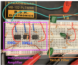 Easy Automated ECG (1 Amplifier, 2 Filters)
