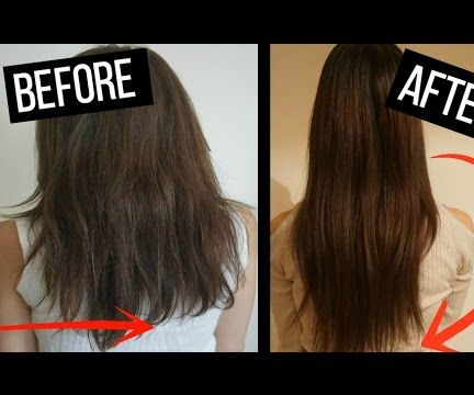 HOW TO GROW YOUR HAIR FAST! 3-5 INCHES IN a WEEK!