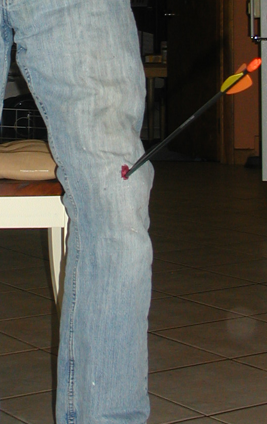 """How to Take an Arrow in the Knee for """"real"""""""