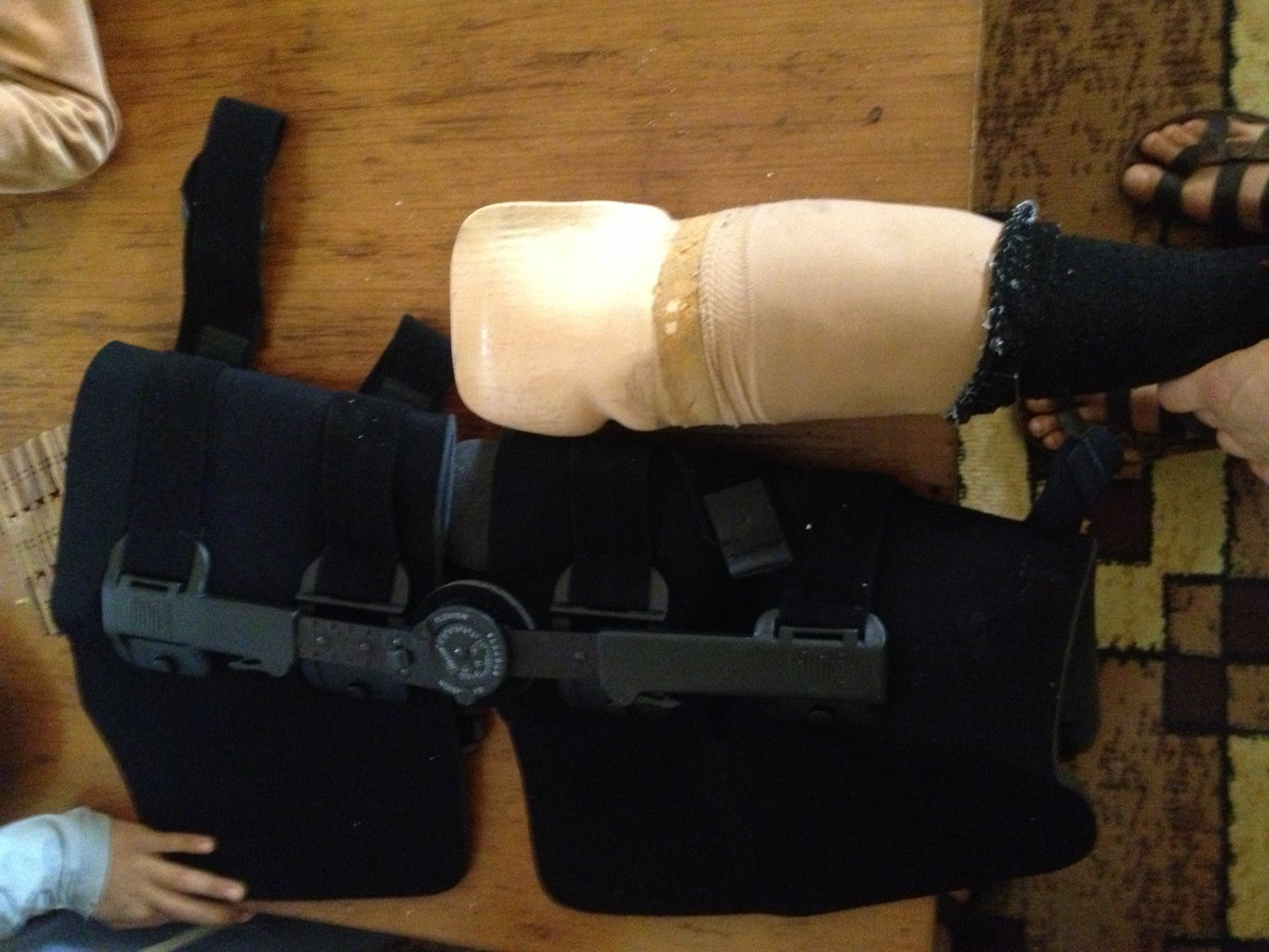 Prosthetics Modification for Pain Relief of Pressure Points