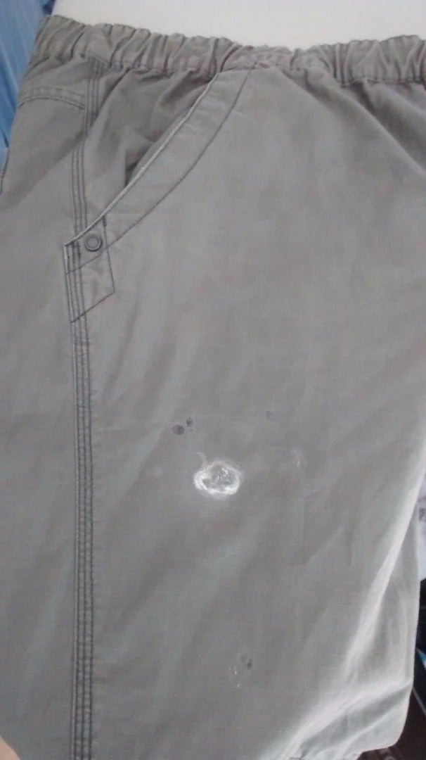 Plan B for 'removing' Super Glue Stain in Clothing